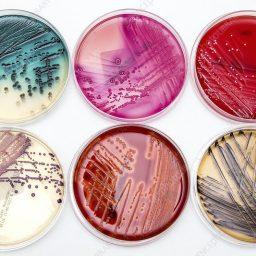 محیط کشت های باکتریایی مختلف