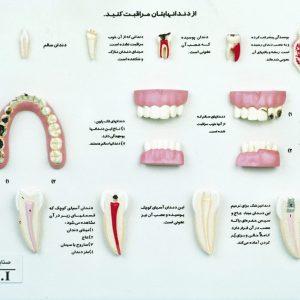 مراقب دندان