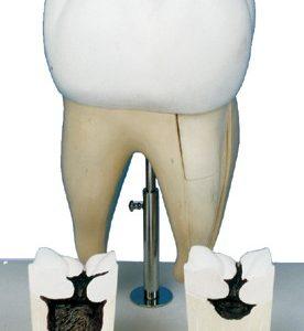 مولاژ اولین دندان آسیای بزرگ فک تحتانی