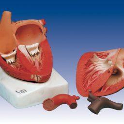 مولاژ قلب، 3برابر اندازه طبیعی